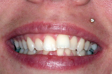 Dents malpositionées. Patiente refuse orthodontie (broches), on s'est alors tourné vers la dentisterie esthétique